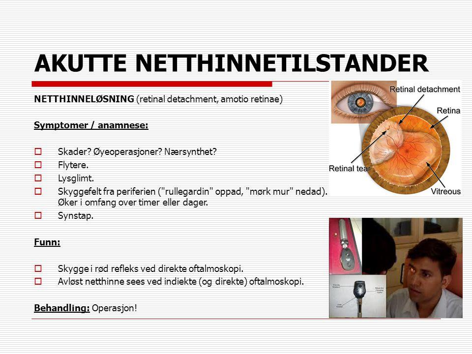 AKUTTE NETTHINNETILSTANDER NETTHINNELØSNING (retinal detachment, amotio retinae) Symptomer / anamnese:  Skader? Øyeoperasjoner? Nærsynthet?  Flytere