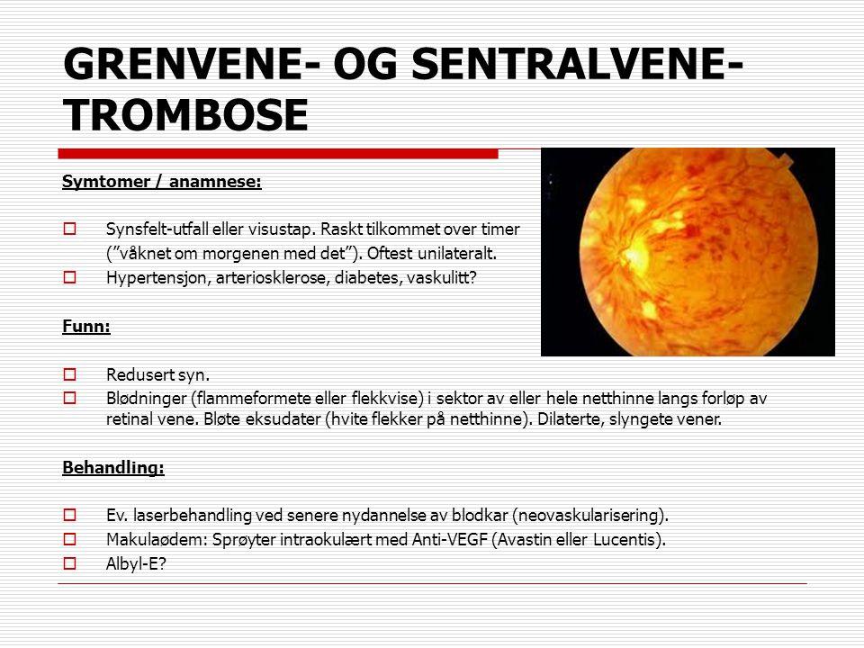 """GRENVENE- OG SENTRALVENE- TROMBOSE Symtomer / anamnese:  Synsfelt-utfall eller visustap. Raskt tilkommet over timer (""""våknet om morgenen med det""""). O"""