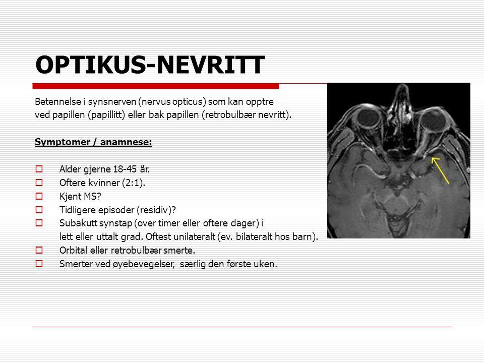OPTIKUS-NEVRITT Betennelse i synsnerven (nervus opticus) som kan opptre ved papillen (papillitt) eller bak papillen (retrobulbær nevritt). Symptomer /