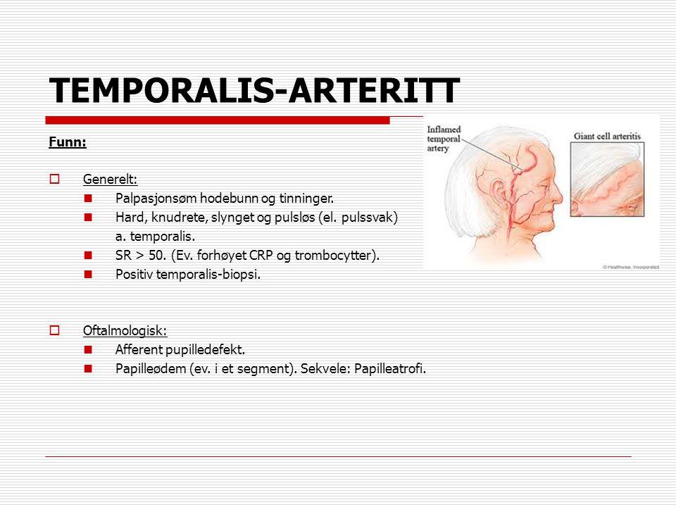 TEMPORALIS-ARTERITT Funn:  Generelt:  Palpasjonsøm hodebunn og tinninger.  Hard, knudrete, slynget og pulsløs (el. pulssvak) a. temporalis.  SR >