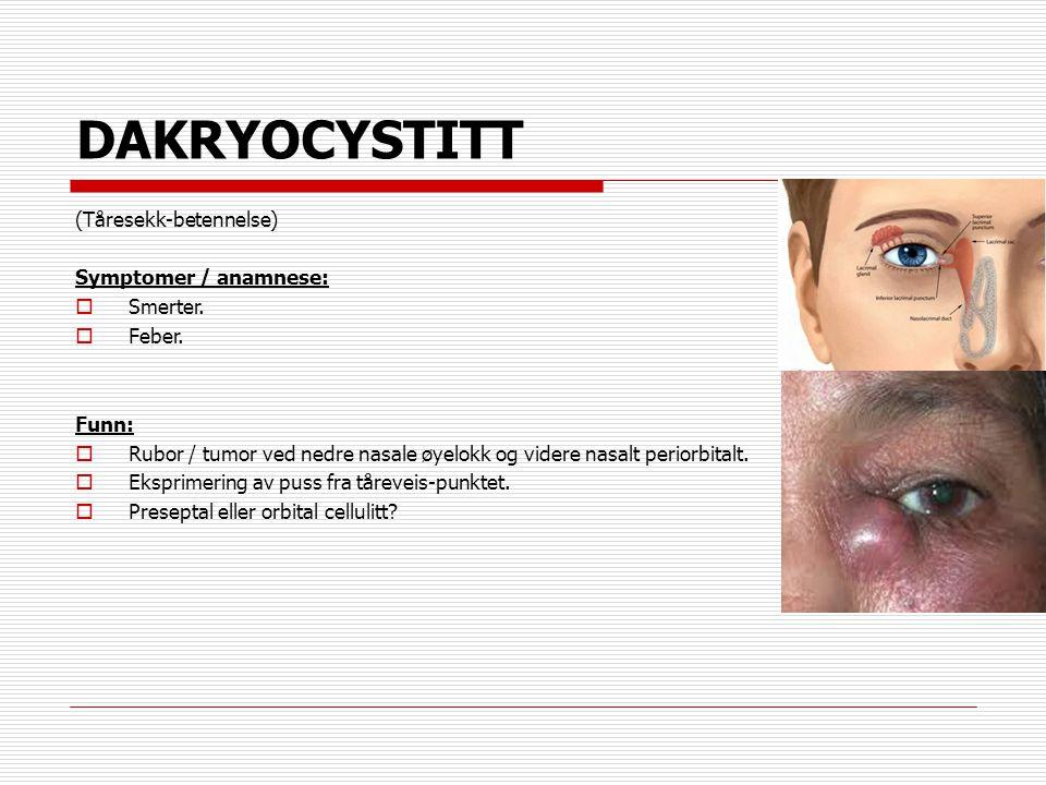 DAKRYOCYSTITT (Tåresekk-betennelse) Symptomer / anamnese:  Smerter.  Feber. Funn:  Rubor / tumor ved nedre nasale øyelokk og videre nasalt periorbi