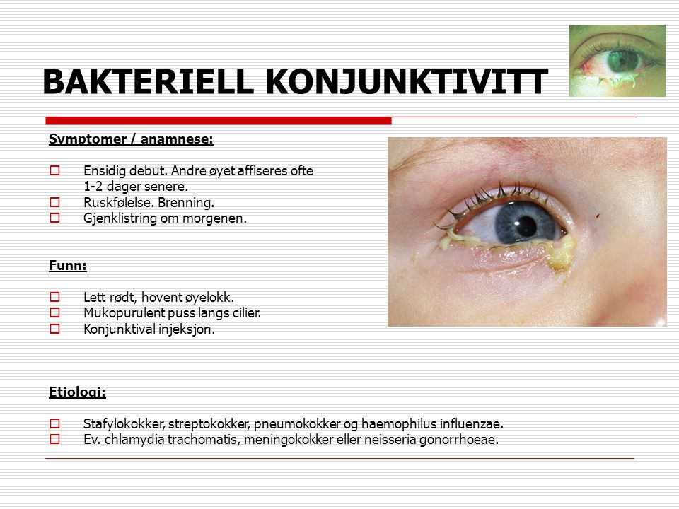 BAKTERIELL KONJUNKTIVITT Symptomer / anamnese:  Ensidig debut. Andre øyet affiseres ofte 1-2 dager senere.  Ruskfølelse. Brenning.  Gjenklistring o