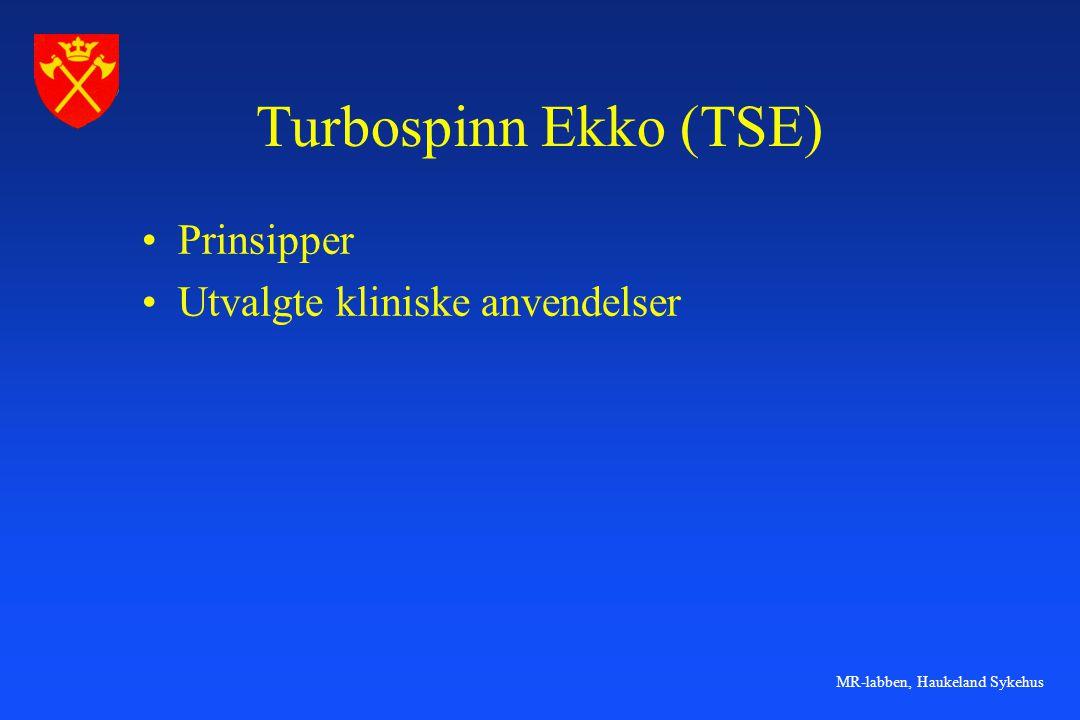 MR-labben, Haukeland Sykehus PD kontrast PD SE, TR=2500 PD TSE, TR=2500 PD SE, TR=4000 PD TSE, TR=400 I PD SE sekvenser brukes vanligvis TR på rundt 2000 for å spare tid.