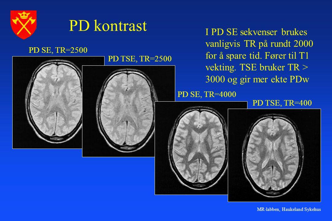 MR-labben, Haukeland Sykehus PD kontrast PD SE, TR=2500 PD TSE, TR=2500 PD SE, TR=4000 PD TSE, TR=400 I PD SE sekvenser brukes vanligvis TR på rundt 2