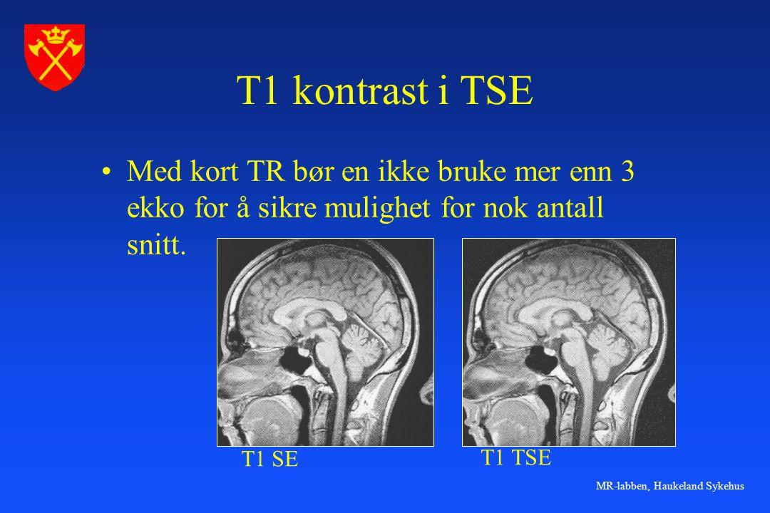 MR-labben, Haukeland Sykehus T1 kontrast i TSE •Med kort TR bør en ikke bruke mer enn 3 ekko for å sikre mulighet for nok antall snitt. T1 SE T1 TSE