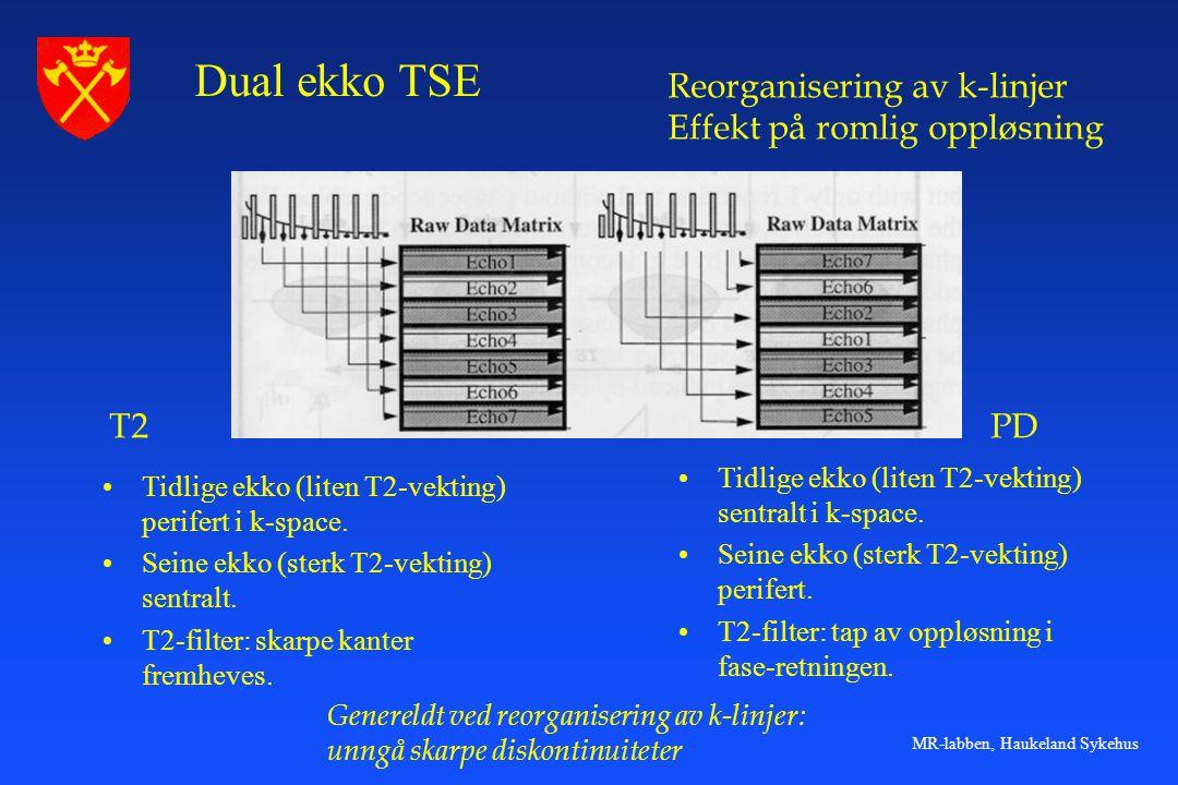 MR-labben, Haukeland Sykehus •Tidlige ekko (liten T2-vekting) perifert i k-space. •Seine ekko (sterk T2-vekting) sentralt. •T2-filter: skarpe kanter f