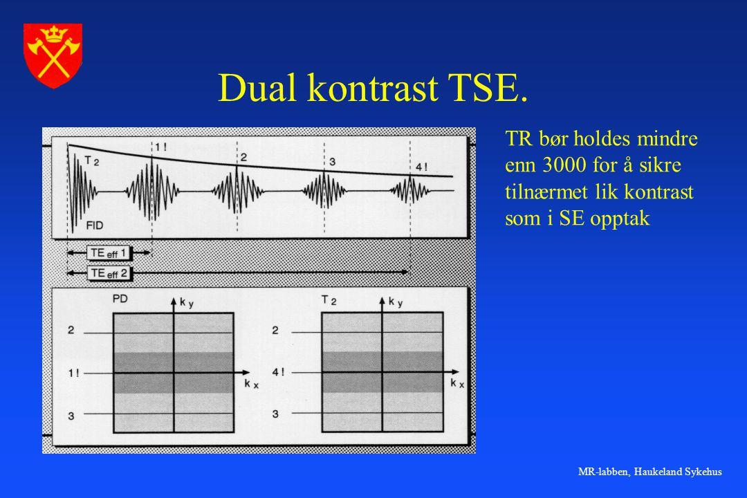 MR-labben, Haukeland Sykehus Dual kontrast TSE. TR bør holdes mindre enn 3000 for å sikre tilnærmet lik kontrast som i SE opptak