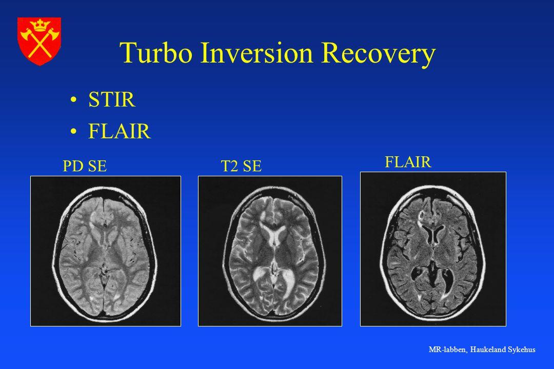 MR-labben, Haukeland Sykehus Turbo Inversion Recovery •STIR •FLAIR PD SET2 SE FLAIR
