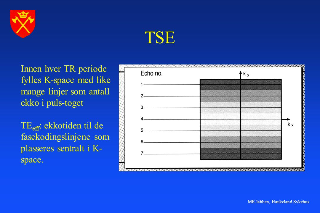 MR-labben, Haukeland Sykehus TSE Innen hver TR periode fylles K-space med like mange linjer som antall ekko i puls-toget TE eff : ekkotiden til de fas