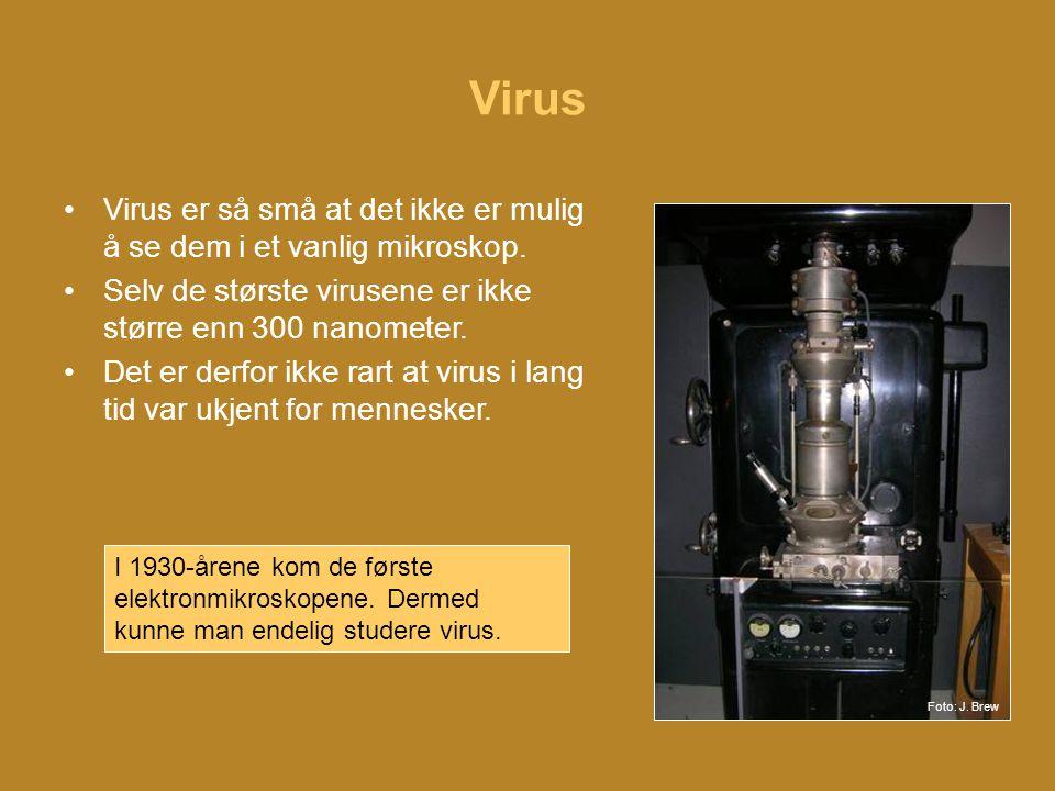 Virus •Virus er så små at det ikke er mulig å se dem i et vanlig mikroskop.