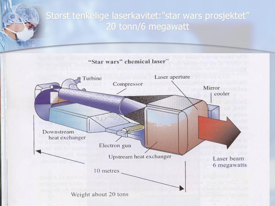 De mest vanlig anvendte lasertyper