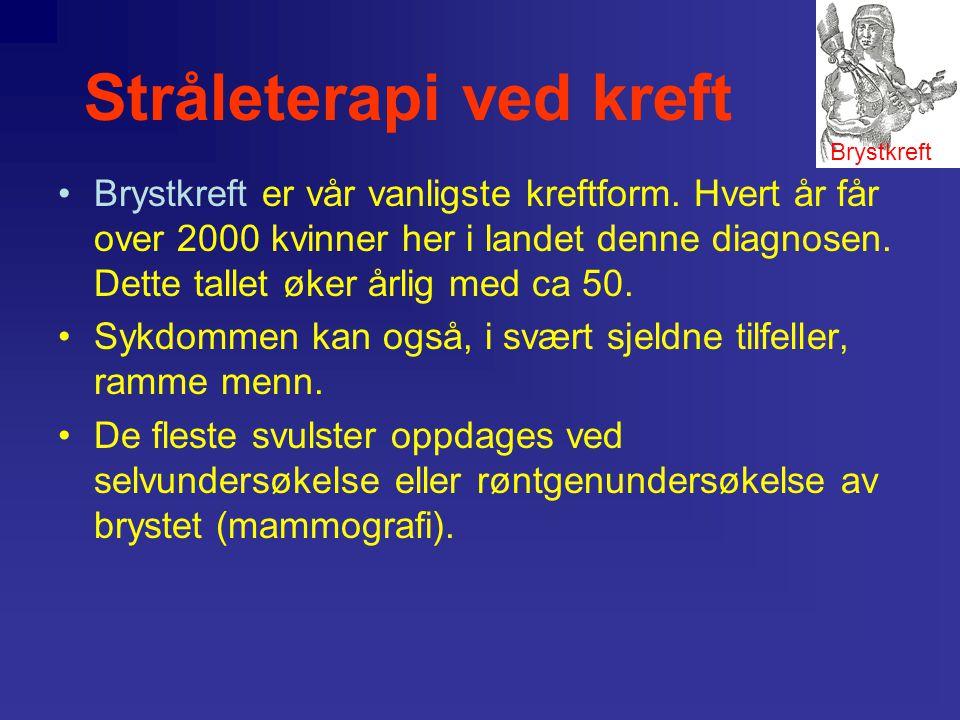 Stråleterapi ved kreft •Behandlingsalternativer: –Kirurgi –Strålterapi –Hormonbehandling –.. •Behandlingsvalg avhenger av: –Svulstens størrelse –Spred