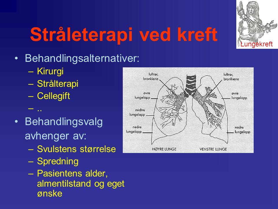 Stråleterapi ved kreft •Lungekreft deles i to hovedgrupper småcellet- og ikke-småcellet lungekreft. •Sykdomsutvikling, behandlingsopplegget og prognos