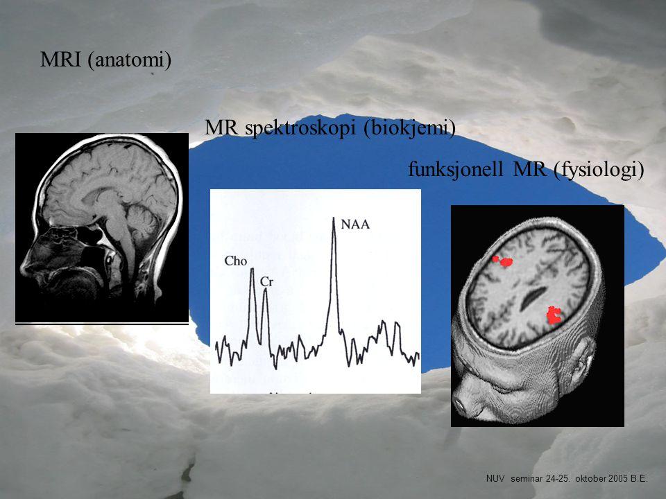 MRI (anatomi) funksjonell MR (fysiologi) MR spektroskopi (biokjemi) NUV seminar 24-25. oktober 2005 B.E.