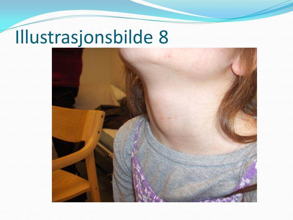 Illustrasjonsbilde 8