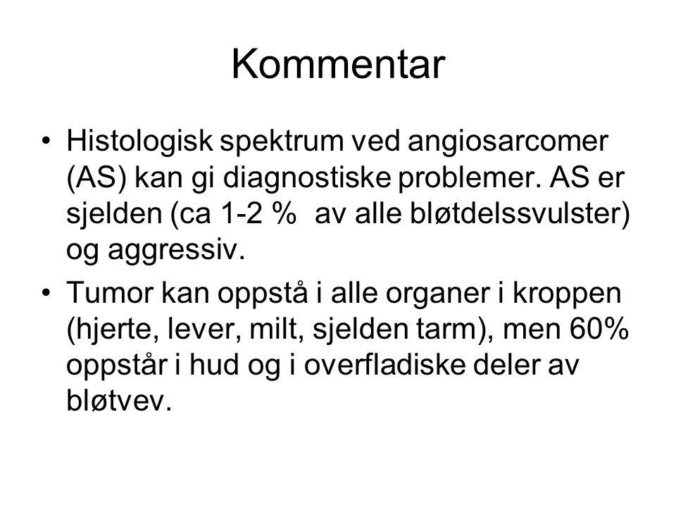 Kommentar •Histologisk spektrum ved angiosarcomer (AS) kan gi diagnostiske problemer.