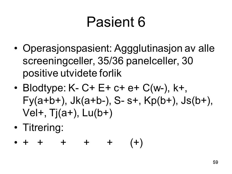 59 Pasient 6 •Operasjonspasient: Aggglutinasjon av alle screeningceller, 35/36 panelceller, 30 positive utvidete forlik •Blodtype: K- C+ E+ c+ e+ C(w-), k+, Fy(a+b+), Jk(a+b-), S- s+, Kp(b+), Js(b+), Vel+, Tj(a+), Lu(b+) •Titrering: •+++++(+)