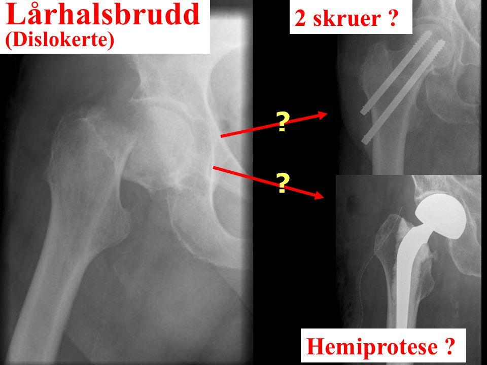 Lårhalsbrudd (Dislokerte) 2 skruer ? Hemiprotese ? ? ?