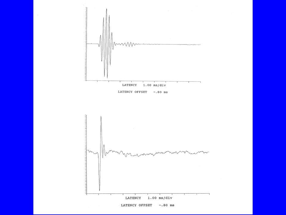 Maskerings-teknikker er ikke kommersielt tilgjengelig i dag i kliniske ABR- instrumenter Frekvensspesifisikke responser er viktige for å øke kvaliteten på høreapp.tilpasninger hos små barn
