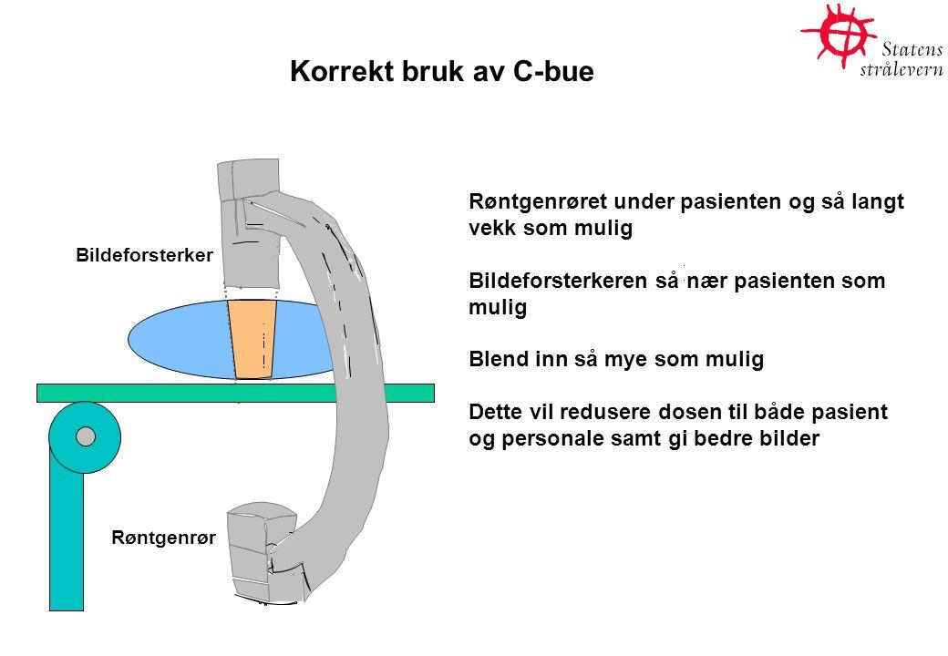 Korrekt bruk av C-bue Røntgenrør Bildeforsterker Røntgenrøret under pasienten og så langt vekk som mulig Bildeforsterkeren så nær pasienten som mulig Blend inn så mye som mulig Dette vil redusere dosen til både pasient og personale samt gi bedre bilder