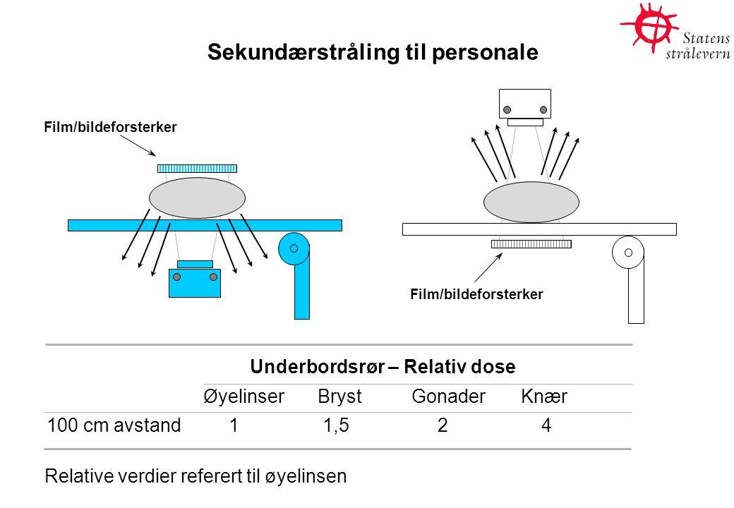 Sekundærstråling til personale Film/bildeforsterker Underbordsrør – Relativ dose ØyelinserBryst GonaderKnær 100 cm avstand 1 1,5 2 4 Relative verdier referert til øyelinsen