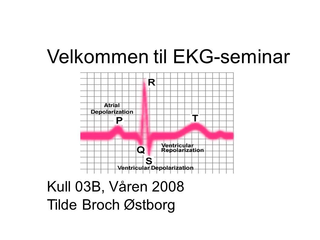 Velkommen til EKG-seminar Kull 03B, Våren 2008 Tilde Broch Østborg