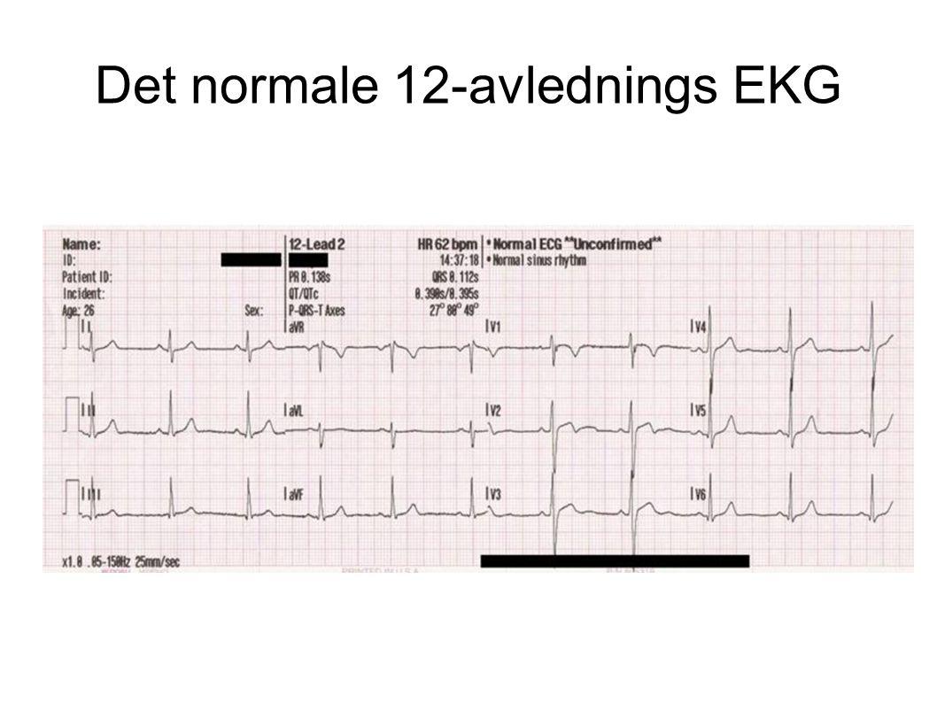 Det normale 12-avlednings EKG