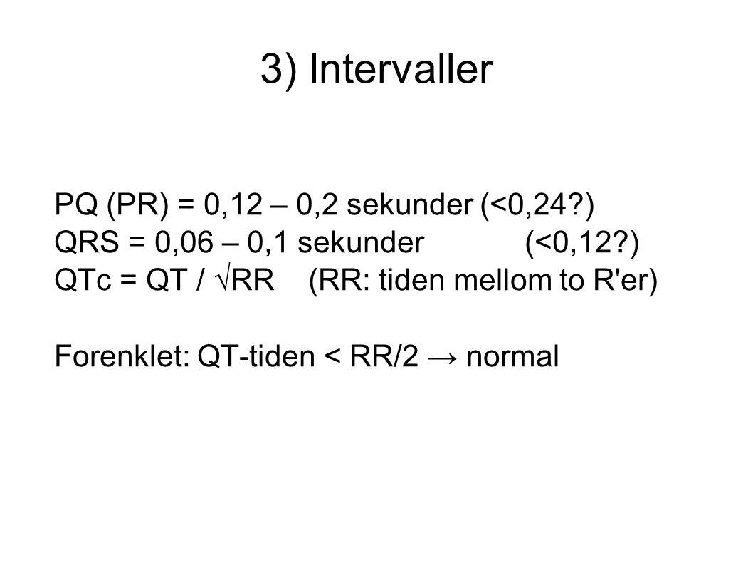 3) Intervaller PQ (PR) = 0,12 – 0,2 sekunder (<0,24?) QRS = 0,06 – 0,1 sekunder (<0,12?) QTc = QT / √RR (RR: tiden mellom to R'er) Forenklet: QT-ti