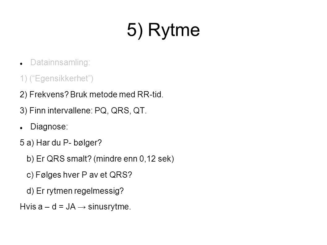"""5) Rytme Datainnsamling: 1) (""""Egensikkerhet"""") 2) Frekvens? Bruk metode med RR-tid. 3) Finn intervallene: PQ, QRS, QT. Diagnose: 5 a) Har du P- bølger"""