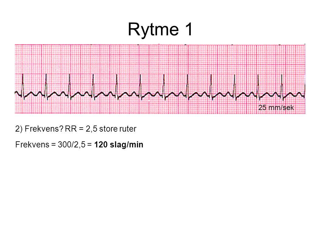 Rytme 1 25 mm/sek 2) Frekvens? RR = 2,5 store ruter Frekvens = 300/2,5 = 120 slag/min