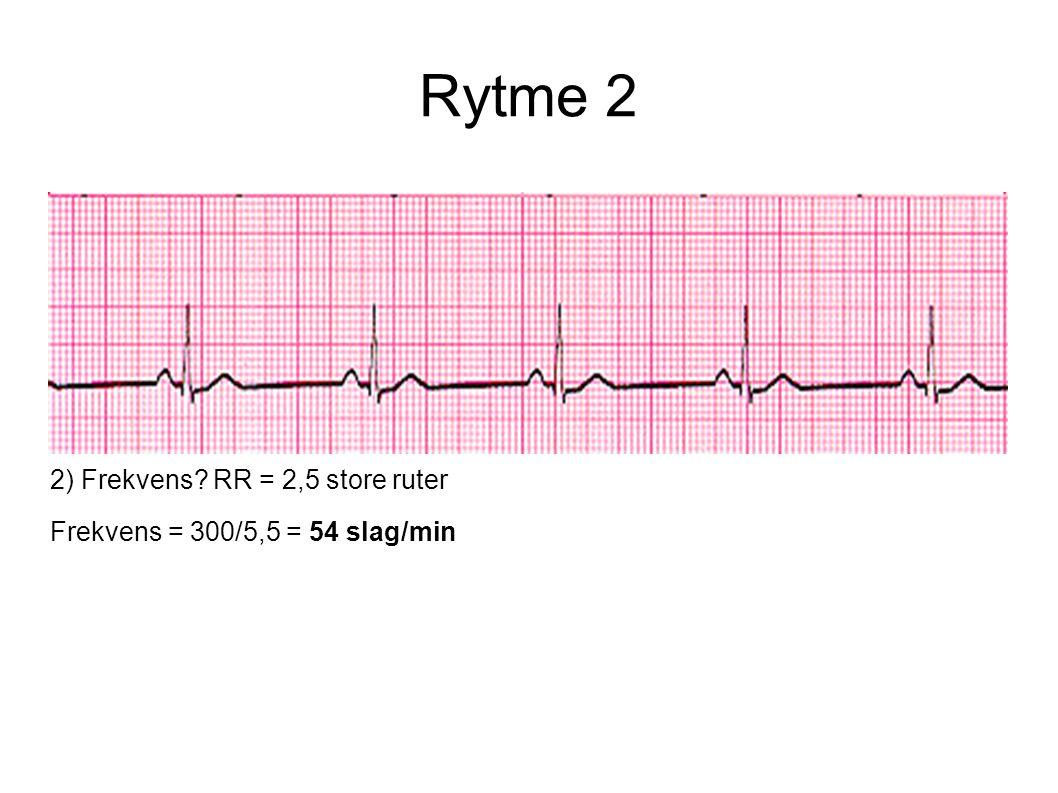 2) Frekvens? RR = 2,5 store ruter Frekvens = 300/5,5 = 54 slag/min