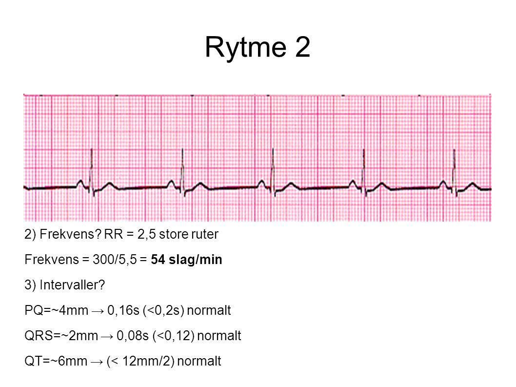 Rytme 2 2) Frekvens? RR = 2,5 store ruter Frekvens = 300/5,5 = 54 slag/min 3) Intervaller? PQ=~4mm → 0,16s (<0,2s) normalt QRS=~2mm → 0,08s (<0,12) no