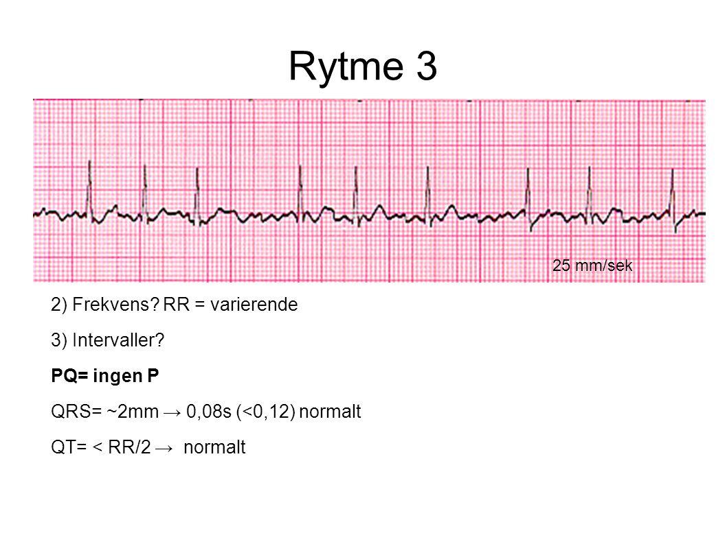 Rytme 3 25 mm/sek 2) Frekvens? RR = varierende 3) Intervaller? PQ= ingen P QRS= ~2mm → 0,08s (<0,12) normalt QT= < RR/2 → normalt