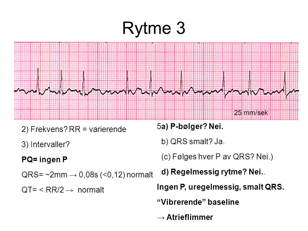 Rytme 3 25 mm/sek 2) Frekvens? RR = varierende 3) Intervaller? PQ= ingen P QRS= ~2mm → 0,08s (<0,12) normalt QT= < RR/2 → normalt 5a) P-bølger? Nei. b