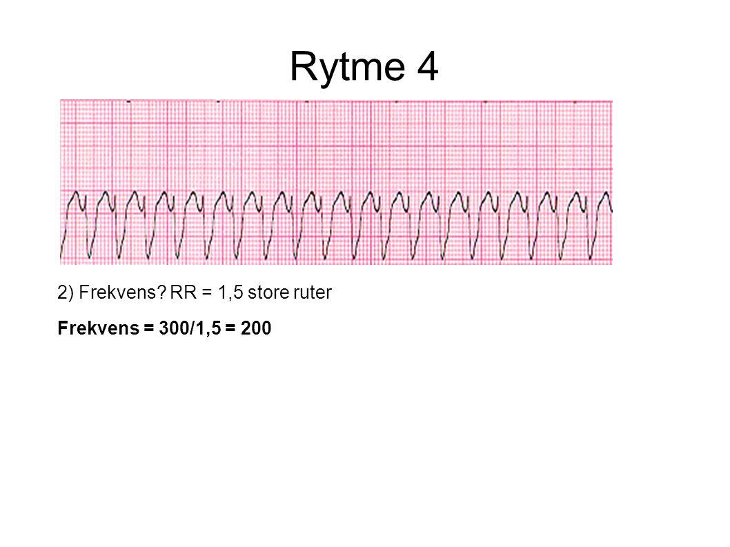 2) Frekvens? RR = 1,5 store ruter Frekvens = 300/1,5 = 200