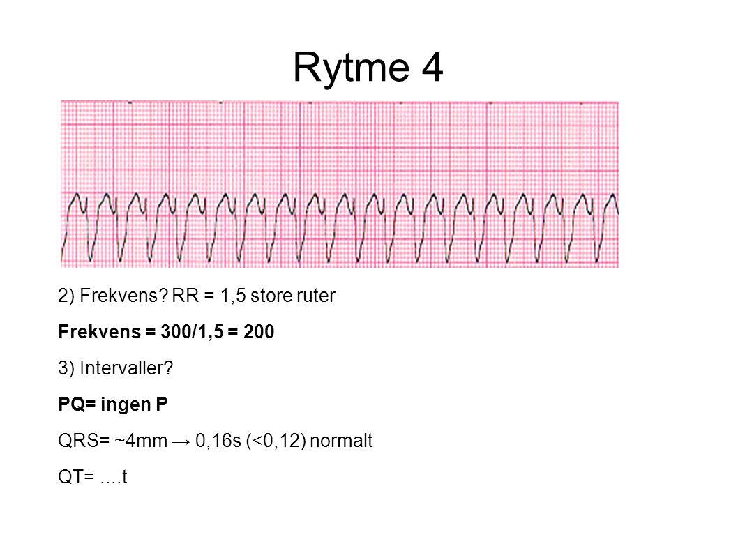 Rytme 4 2) Frekvens? RR = 1,5 store ruter Frekvens = 300/1,5 = 200 3) Intervaller? PQ= ingen P QRS= ~4mm → 0,16s (<0,12) normalt QT=....t