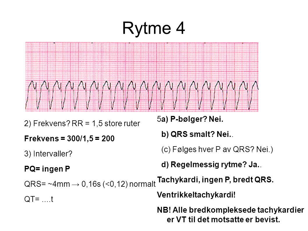 Rytme 4 2) Frekvens? RR = 1,5 store ruter Frekvens = 300/1,5 = 200 3) Intervaller? PQ= ingen P QRS= ~4mm → 0,16s (<0,12) normalt QT=....t 5a) P-bølger