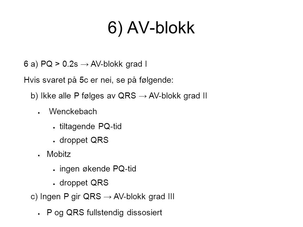 6) AV-blokk 6 a) PQ > 0.2s → AV-blokk grad I Hvis svaret på 5c er nei, se på følgende: b) Ikke alle P følges av QRS → AV-blokk grad II  Wenckebach 