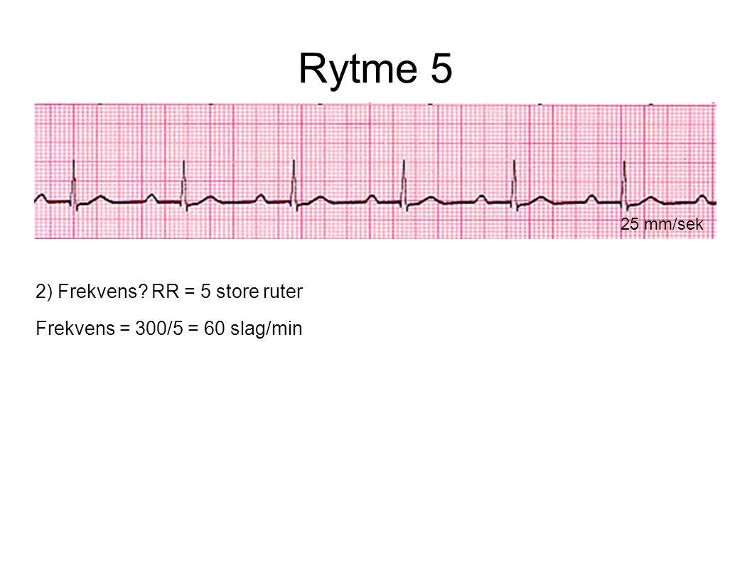 Rytme 5 25 mm/sek 2) Frekvens? RR = 5 store ruter Frekvens = 300/5 = 60 slag/min