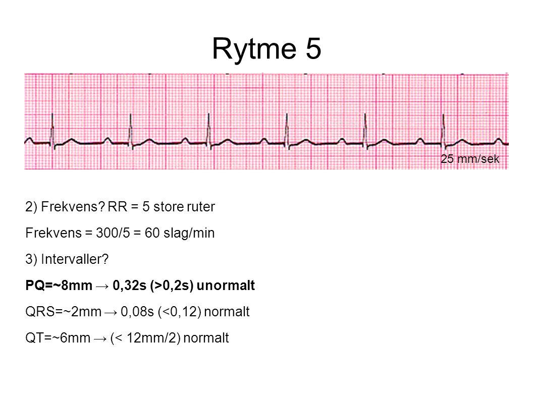 Rytme 5 25 mm/sek 2) Frekvens? RR = 5 store ruter Frekvens = 300/5 = 60 slag/min 3) Intervaller? PQ=~8mm → 0,32s (>0,2s) unormalt QRS=~2mm → 0,08s (<0