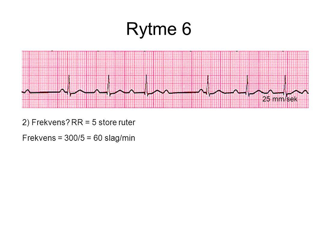 Rytme 6 25 mm/sek 2) Frekvens? RR = 5 store ruter Frekvens = 300/5 = 60 slag/min