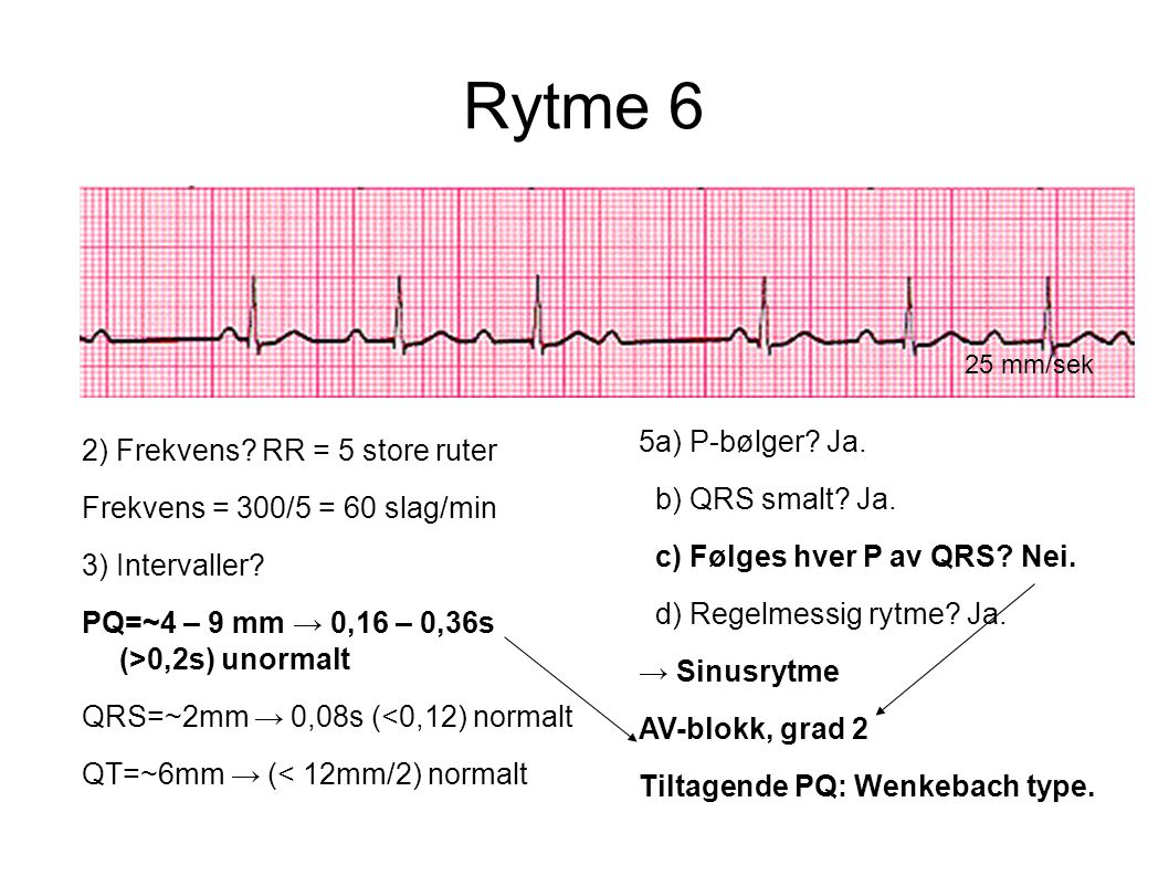 Rytme 6 25 mm/sek 2) Frekvens? RR = 5 store ruter Frekvens = 300/5 = 60 slag/min 3) Intervaller? PQ=~4 – 9 mm → 0,16 – 0,36s (>0,2s) unormalt QRS=~2mm