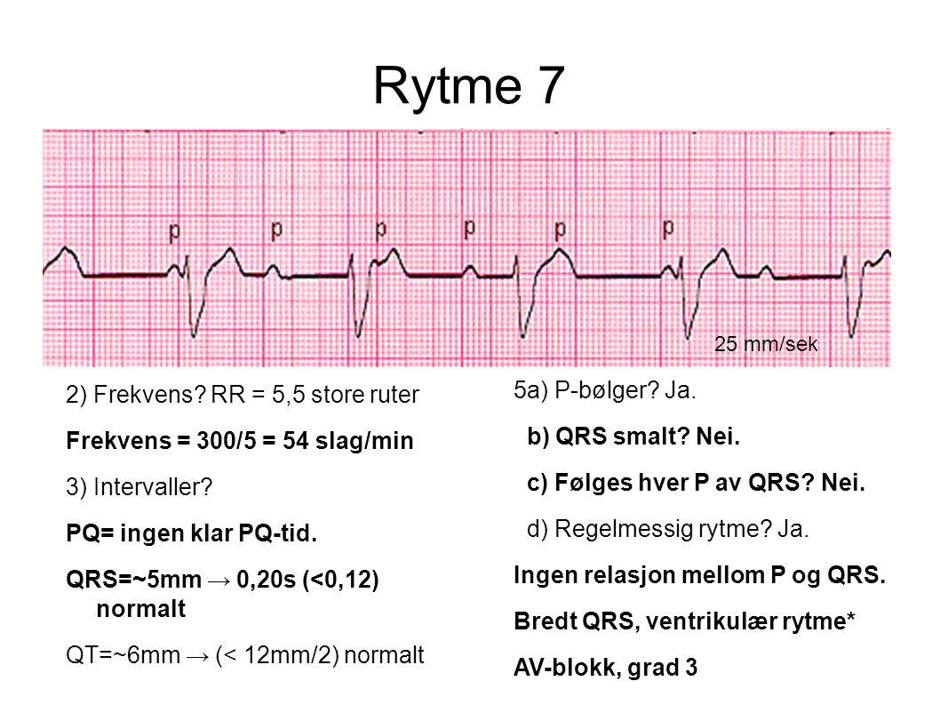Rytme 7 25 mm/sek 2) Frekvens? RR = 5,5 store ruter Frekvens = 300/5 = 54 slag/min 3) Intervaller? PQ= ingen klar PQ-tid. QRS=~5mm → 0,20s (<0,12) nor