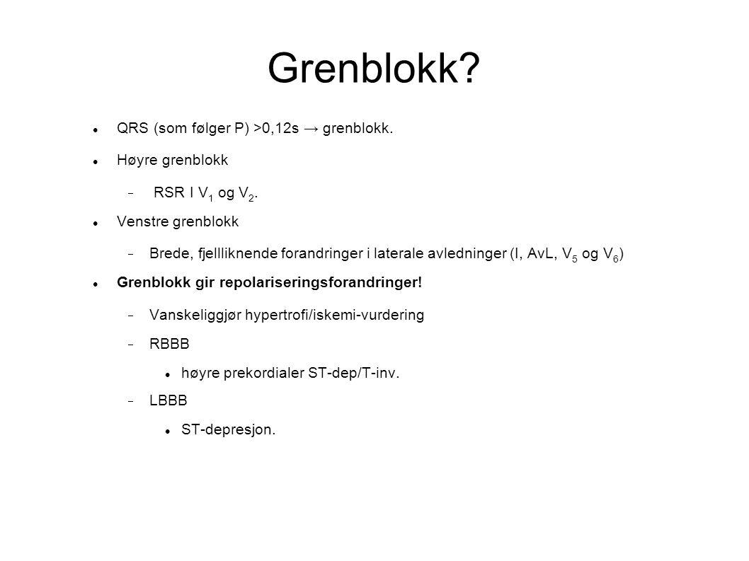 Grenblokk? QRS (som følger P) >0,12s → grenblokk. Høyre grenblokk  RSR I V 1 og V 2. Venstre grenblokk  Brede, fjellliknende forandringer i laterale