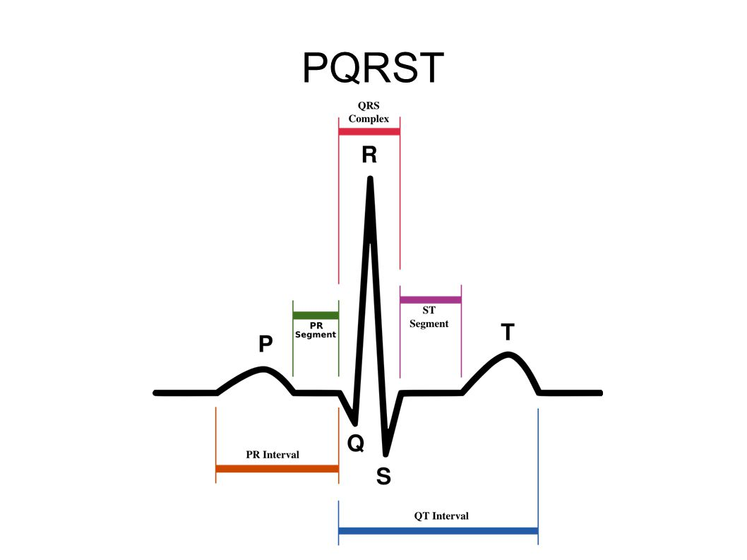6) AV-blokk 6 a) PQ > 0.2s → AV-blokk grad I Hvis svaret på 5c er nei, se på følgende: b) Ikke alle P følges av QRS → AV-blokk grad II  Wenckebach  tiltagende PQ-tid  droppet QRS  Mobitz  ingen økende PQ-tid  droppet QRS c) Ingen P gir QRS → AV-blokk grad III  P og QRS fullstendig dissosiert