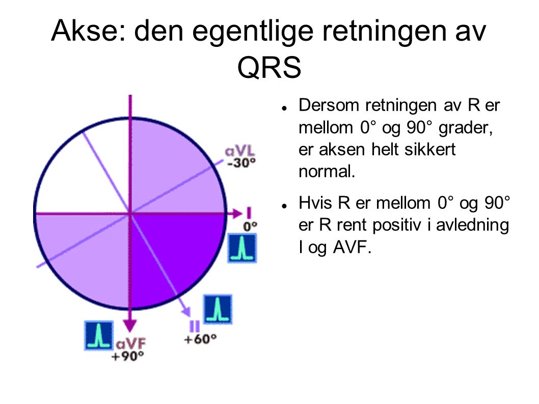 Akse: den egentlige retningen av QRS Dersom retningen av R er mellom 0° og 90° grader, er aksen helt sikkert normal. Hvis R er mellom 0° og 90° er R r