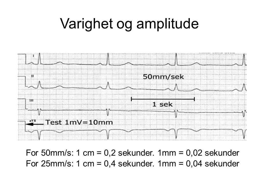 Varighet og amplitude For 50mm/s: 1 cm = 0,2 sekunder. 1mm = 0,02 sekunder For 25mm/s: 1 cm = 0,4 sekunder. 1mm = 0,04 sekunder