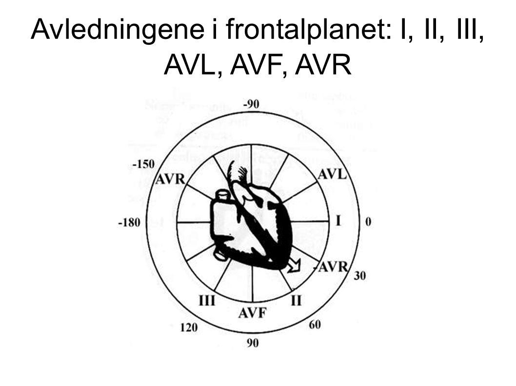 Rytme 5 25 mm/sek 2) Frekvens.RR = 5 store ruter Frekvens = 300/5 = 60 slag/min 3) Intervaller.