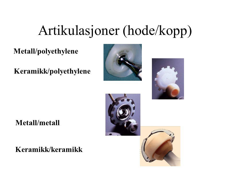 Artikulasjoner (hode/kopp) Metall/polyethylene Metall/metall Keramikk/polyethylene Keramikk/keramikk