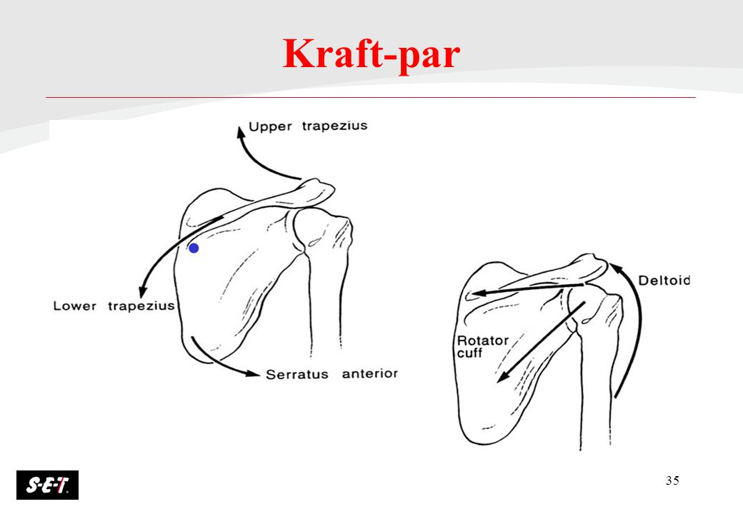 35 Kraft-par